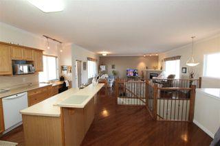 Photo 2: 16 17715 96 Avenue in Edmonton: Zone 20 House Half Duplex for sale : MLS®# E4210827