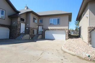 Photo 1: 16 17715 96 Avenue in Edmonton: Zone 20 House Half Duplex for sale : MLS®# E4210827