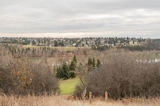 Photo 25: 11157 53 Street in Edmonton: Zone 09 House for sale : MLS®# E4179060
