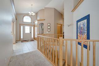 Photo 3: 183 HERITAGE Lane: Sherwood Park House for sale : MLS®# E4188829