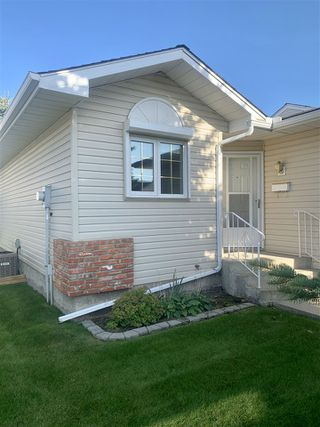 Photo 2: 903 YOUVILLE Drive W in Edmonton: Zone 29 House Half Duplex for sale : MLS®# E4174127