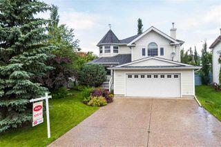 Main Photo: 10328 180 Avenue in Edmonton: Zone 27 House for sale : MLS®# E4165605