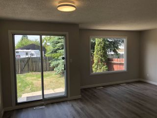 Photo 6: 15304 121 Street in Edmonton: Zone 27 House Half Duplex for sale : MLS®# E4202012