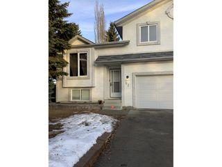 Photo 3: 63 Alderwood Boulevard in St. Albert: House for rent