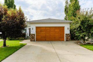 Photo 2: 140 Calico Drive: Sherwood Park House for sale : MLS®# E4167653