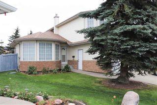 Photo 2:  in Edmonton: Zone 27 House for sale : MLS®# E4175659
