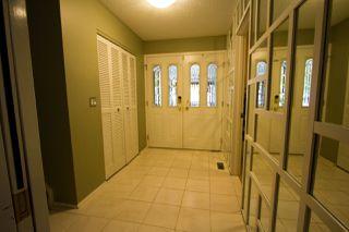 Photo 2: 28 BEACON Crescent: St. Albert House for sale : MLS®# E4175845