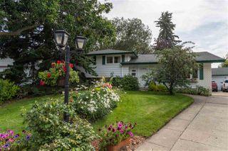 Main Photo: 1032 Adamson Crescent: Sherwood Park House for sale : MLS®# E4170952