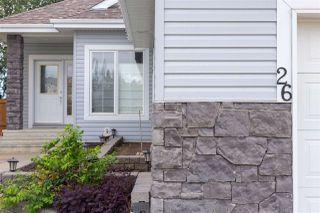 Photo 4: 26 NORRIS Crescent: St. Albert House for sale : MLS®# E4205746