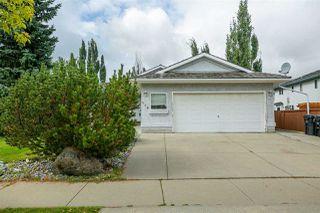 Photo 2: 258 NOTTINGHAM Boulevard: Sherwood Park House for sale : MLS®# E4214544