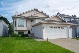 Main Photo: 11526 170 Avenue in Edmonton: Zone 27 House for sale : MLS®# E4167937