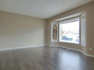 Photo 5: 8332 158 Avenue in Edmonton: Zone 28 House for sale : MLS®# E4193839