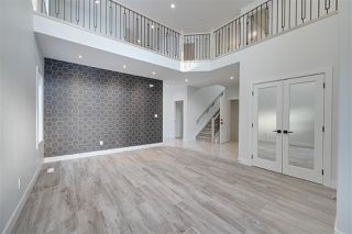 Photo 2: 1184 CY BECKER Road in Edmonton: Zone 03 House for sale : MLS®# E4181701