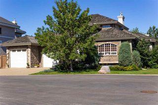Photo 3: 5023 DONSDALE Drive in Edmonton: Zone 20 Condo for sale : MLS®# E4211970