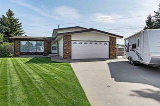 Main Photo: 15215 124 Street in Edmonton: Zone 27 House for sale : MLS®# E4170372