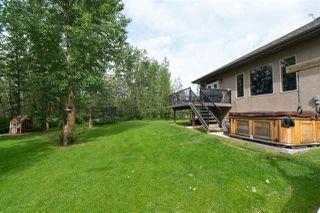 Photo 7: 21 53305 Range Road 273: Rural Parkland County House for sale : MLS®# E4217914