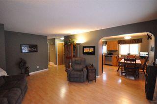 Photo 4: 39 UMBACH Road: Stony Plain House for sale : MLS®# E4187846