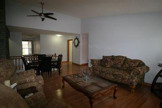 Photo 5: 27 320 JIM COMMON Drive NW: Sherwood Park House Half Duplex for sale : MLS®# E4216651