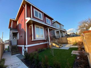 Photo 11: 4989 MOSS Street in Vancouver: Collingwood VE 1/2 Duplex for sale (Vancouver East)  : MLS®# R2525974