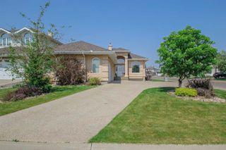 Photo 3: 9304 157 Avenue in Edmonton: Zone 28 House for sale : MLS®# E4172096
