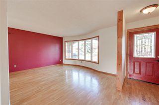 Photo 7: 103 WOODBINE Road: Sherwood Park House for sale : MLS®# E4218645