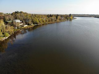Photo 8: 3 Lakeview Drive: Hardisty House for sale : MLS®# E4172102
