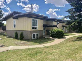 Main Photo: 14604 118 Street in Edmonton: Zone 27 House Half Duplex for sale : MLS®# E4132863