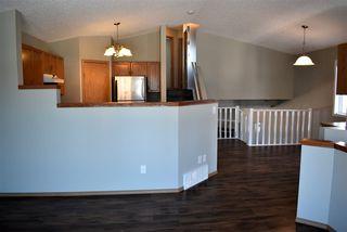 Photo 8: 15039 133 Street in Edmonton: Zone 27 House for sale : MLS®# E4140956