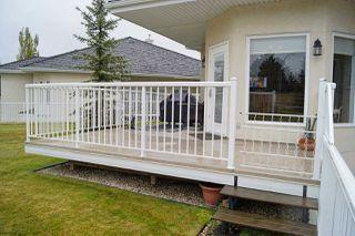Photo 30: 54 1225 WANYANDI Road in Edmonton: Zone 22 House Half Duplex for sale : MLS®# E4157441