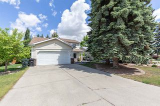 Main Photo: 659 VILLAGE Drive: Sherwood Park House for sale : MLS®# E4161598
