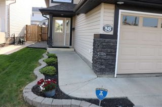 Photo 2: 58 Chestermere Crescent: Sherwood Park House for sale : MLS®# E4191131