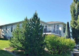 Photo 24: 1324 THOMPSON Court in Edmonton: Zone 14 House Half Duplex for sale : MLS®# E4157457