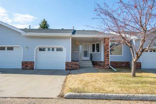 Photo 1: 17320 Callingwood Rd in Edmonton: Zone 20 Townhouse for sale : MLS®# E4156064