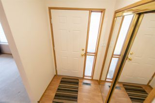 Photo 3: 17320 Callingwood Rd in Edmonton: Zone 20 Townhouse for sale : MLS®# E4156064