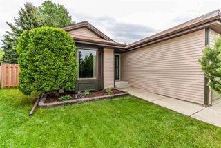 Photo 8: 721 WELLINGTON Lane: Sherwood Park House for sale : MLS®# E4161738