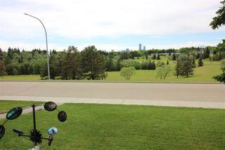 Photo 4: 10415 FULTON Drive in Edmonton: Zone 19 House for sale : MLS®# E4161135