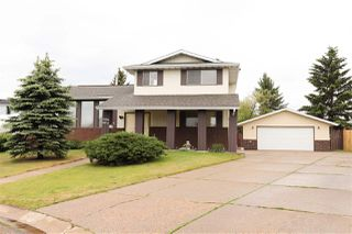 Photo 1: 16004 102 Street in Edmonton: Zone 27 House for sale : MLS®# E4160879