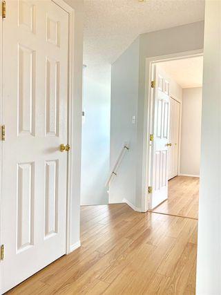 Photo 9: 29 345 KIRKNESS Road in Edmonton: Zone 35 House Half Duplex for sale : MLS®# E4161740