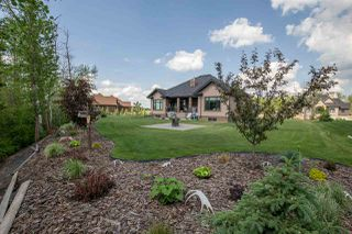 Photo 4: 284 52367 RGE RD 223: Rural Strathcona County House for sale : MLS®# E4150463