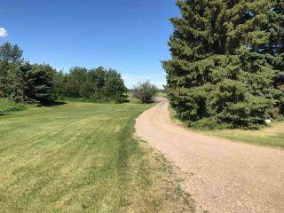 Photo 3: 50447 Range Road 234: Rural Leduc County House for sale : MLS®# E4117562