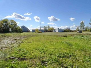 Photo 28: 545025 191 Road: Rural Lamont County House for sale : MLS®# E4151416