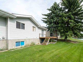 Photo 19: 12 20 GEORGIAN Way: Sherwood Park House Half Duplex for sale : MLS®# E4163478
