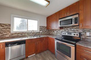Main Photo: 16948 103 Street in Edmonton: Zone 27 House for sale : MLS®# E4212953
