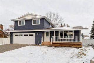 Photo 2: 2725 118 Street in Edmonton: Zone 16 House for sale : MLS®# E4179960