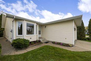Photo 3: 7007 190 Street in Edmonton: Zone 20 House for sale : MLS®# E4175188