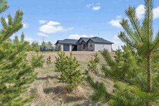 Photo 2: 63032 Rge Rd 463: Rural Bonnyville M.D. House for sale : MLS®# E4198762