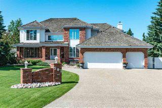 Photo 1: 581 ESTATE Drive: Sherwood Park House for sale : MLS®# E4204976