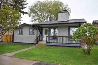 Photo 2: 10211 172 Avenue in Edmonton: Zone 27 House for sale : MLS®# E4198113