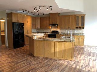 Photo 8: B 11 ST VITAL Avenue: St. Albert House Half Duplex for sale : MLS®# E4177865