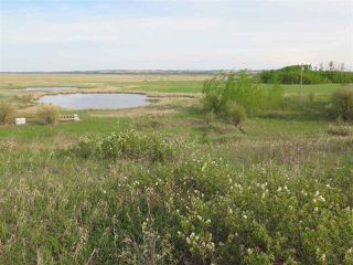 Photo 12: 45063B TWP RD 734 (KLESKUN WEST): Rural Grande Prairie County Rural Land/Vacant Lot for sale : MLS®# E4190065